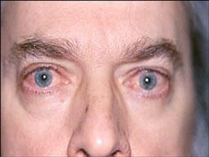 Гранулематоз Вегенера на глазах