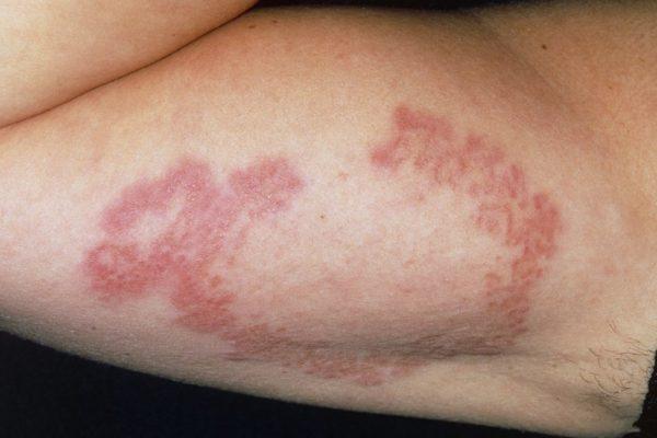 Анулярная гранулёма на руке