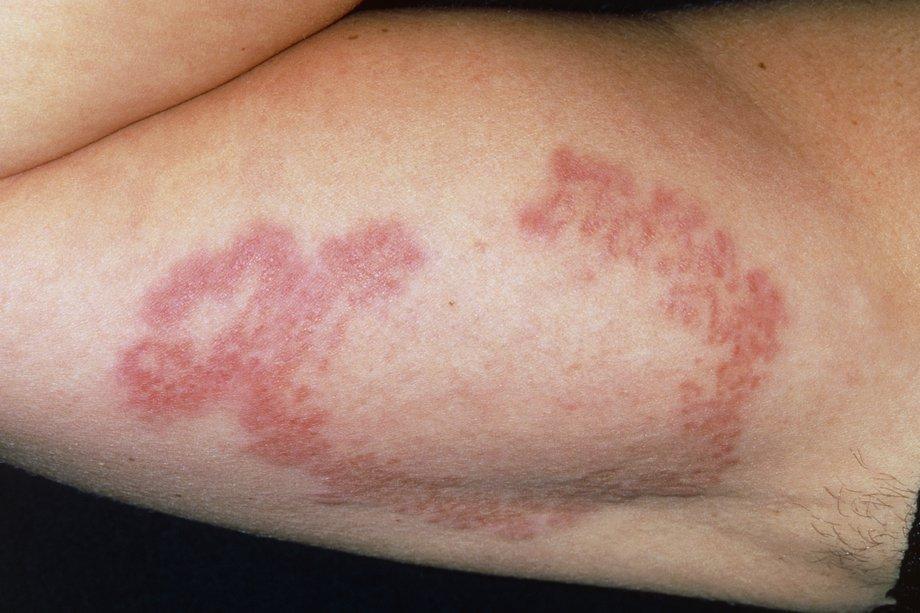 Гранулематозное воспаление лечение