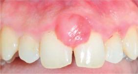 Пиогенная гранулёма во рту