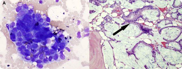 Метастазы аденокарциномы в костном мозге