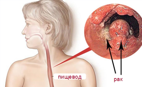 Опухоль в пищеводе
