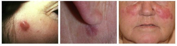 Гранулематоз на лице