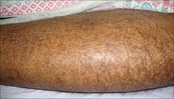 Ксероз кожи