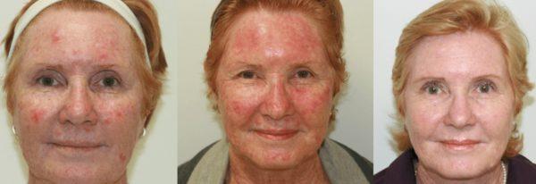Фотодинамическая терапия кожи лица до и после применения метода