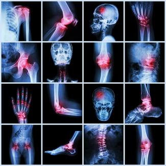 Снимок остеосцинтиграфии