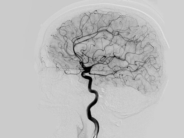 Картина ангиографии сосудов мозга