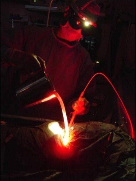 Фотодинамическая терапия мезотелиомы плевры