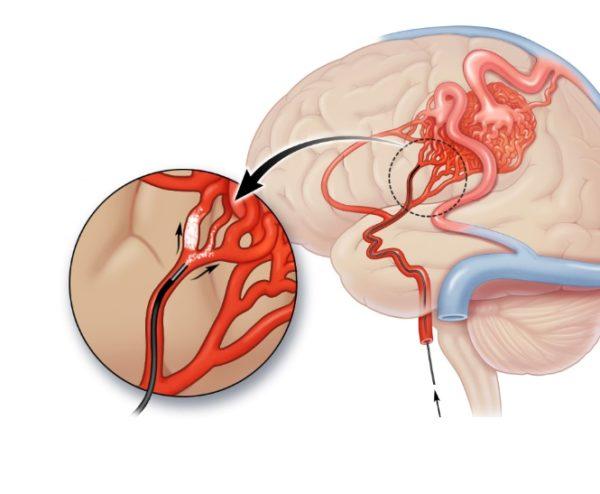 Эмболизация сосудов головного мозга