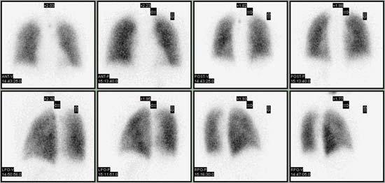 Динамика в сцинтиграфии лёгких