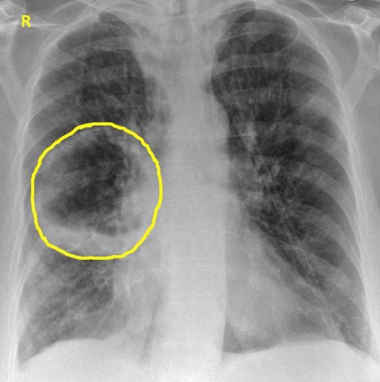 Абсцесс лёгкого на рентгене