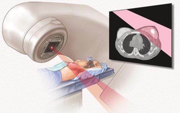 Облучение рака груди