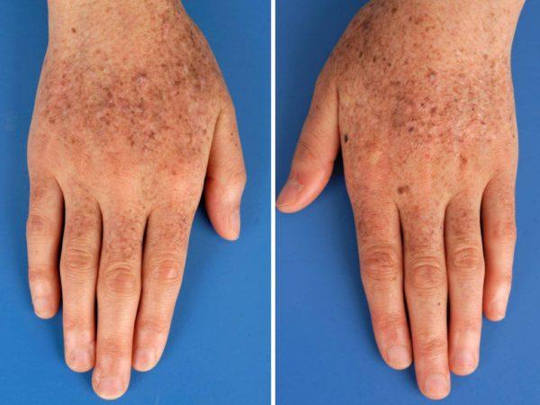 Xeroderma pigmentosum на руках