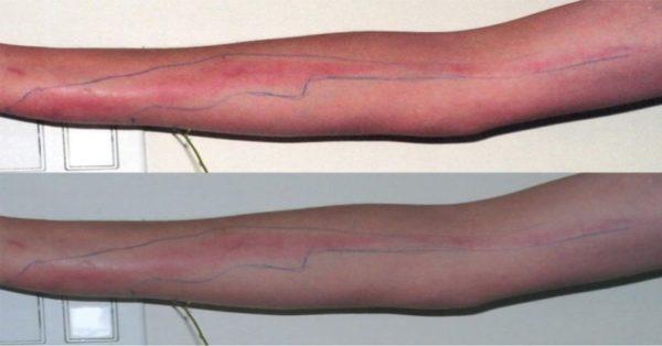 Симптомы заражения крови на руке
