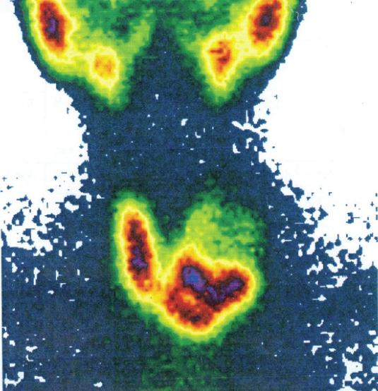 Картина сцинтиграфии щитовидной железы