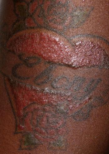 Гранулёма после татуировки