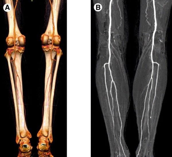 Построение картины сосудов ног по результатам ангиографии
