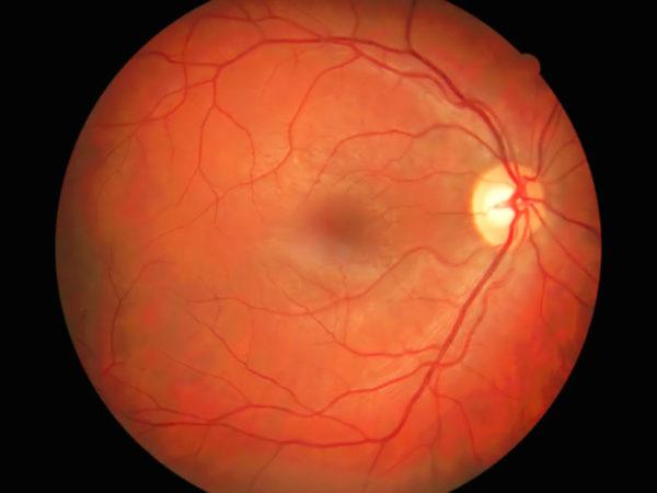 Ангиография глаза