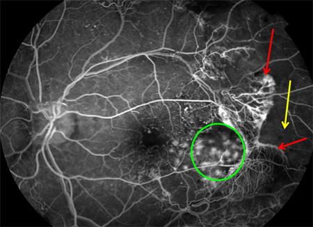 Обнаружение диабетической ретинопатии на ангиограмме глаза