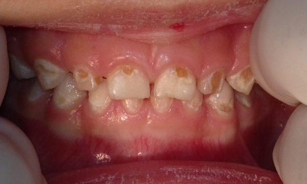 Дефекты зубов у подростка