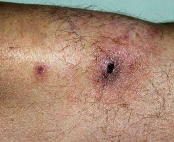 Рана у больного нейтропенией