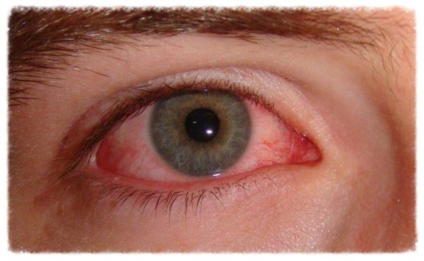 Покрасневший глаз человека