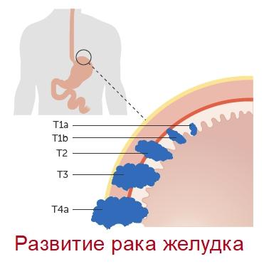 Развитие рака желудка