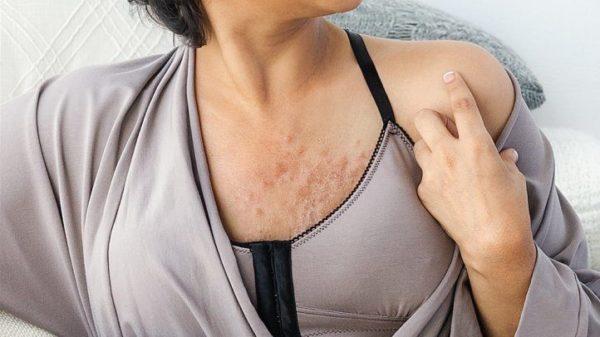 Женщина после мастэктомии
