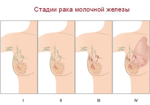 Стадии рака молочной железы: виды и классификация диагностики