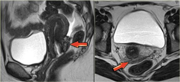 Рак эндометрия на снимках