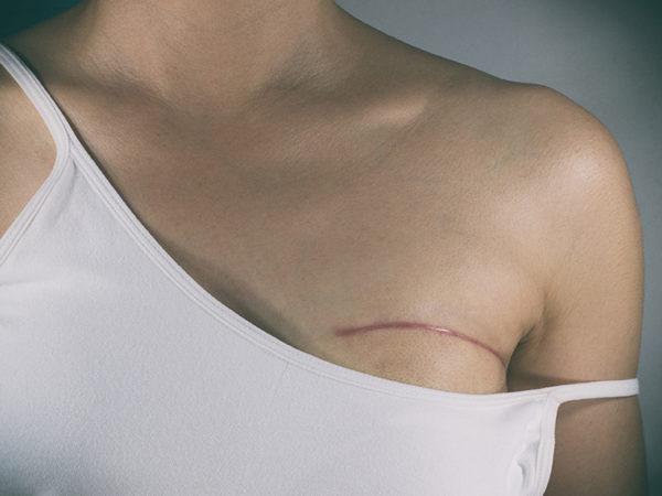 Шрам после удаления рака груди