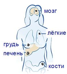 Метастазы от рака груди