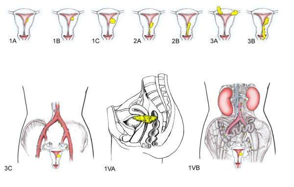 Стадии рака эндометрия