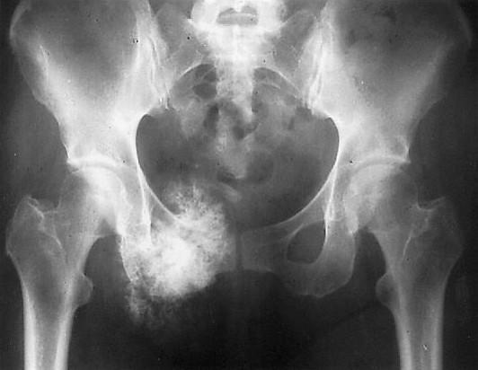 Остеогенная саркома тазобедренного сустава