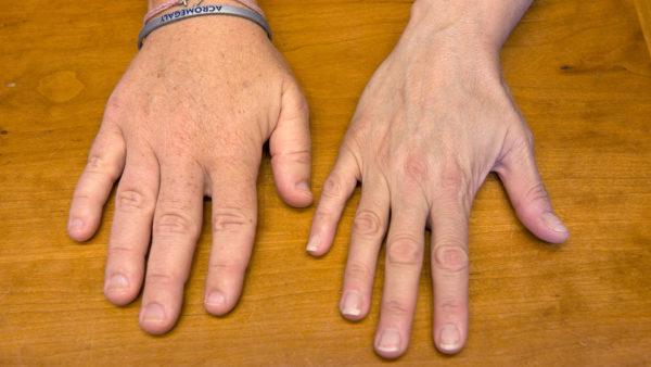 Пример акромегалии на руке человека с больным гипофизом