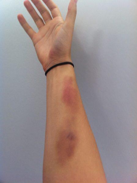 Синяки на руках больного