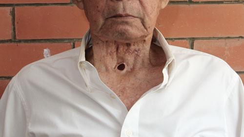 Последствия операции после удаления рака горла