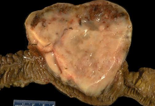 Лейомиосаркома кишечника