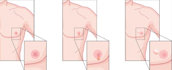 Симптомы повреждения соска грудной железы