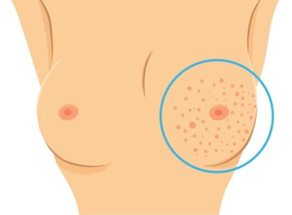 Видоизменения поражённой груди
