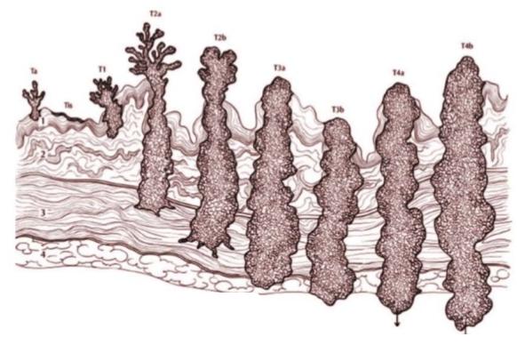 Рак мочевого пузыря по стадиям