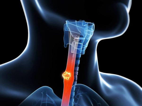 Рак пищевода на схеме
