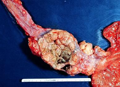 Эзофагеальный рак
