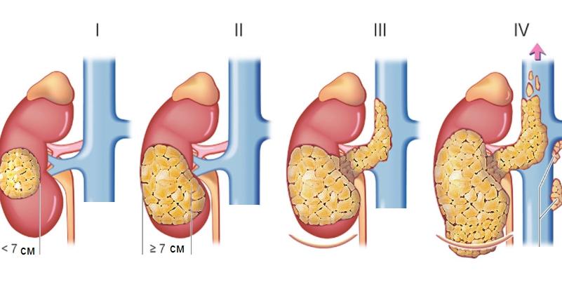 Рак матки и продолжительность жизни с опухолью. Сколько лет живут с раком матки