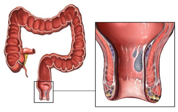 Солидный рак в прямой кишке