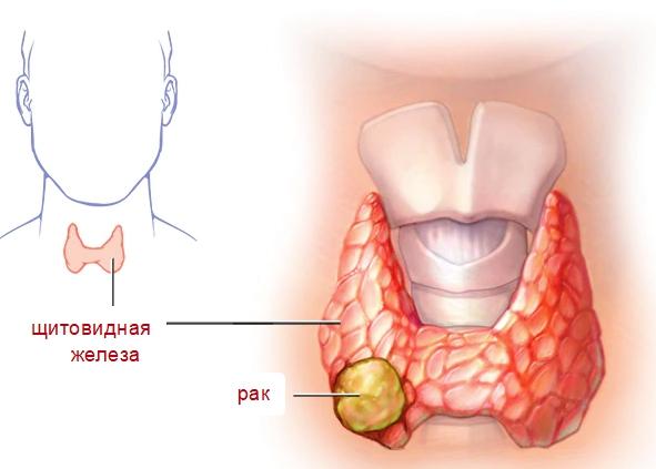Карцинома щитовидной железы