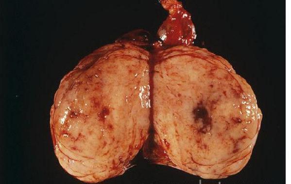 Рак удалённого яичка