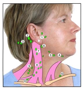 Увеличились лимфоузлы на шее? Воспаление