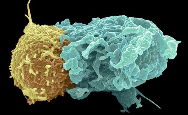 Т-лимфоцит разрушает патогенную клетку