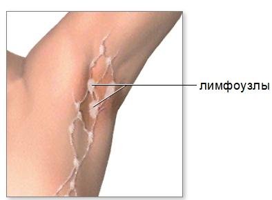 Расположение лимфоузлов в подмышках